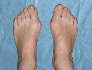 Магнитный пластырь от косточек на ногах и его эффективное применение