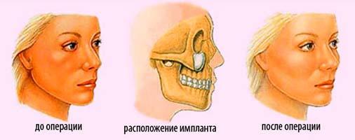 импланты в скулы до и после фото