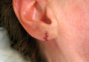 Зашить дырки в ушах сумы