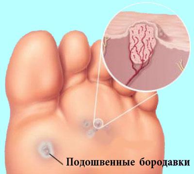 Лечение кондилом у женщин на малых губах