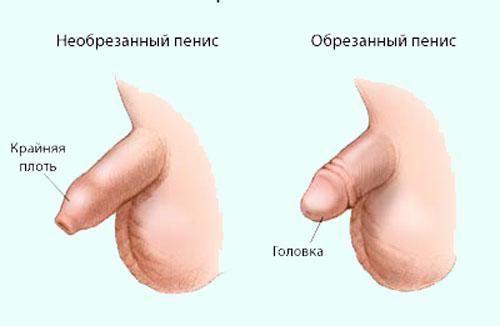 Как увеличить член с помощью соды увеличение пениса пищевой содой